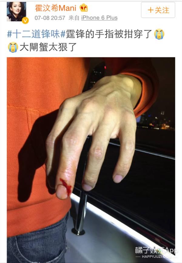 谢霆锋被螃蟹夹伤  突然间很想让自己成为那只蟹