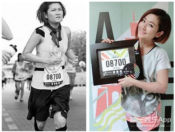 【你谁啊你】猜猜TA是谁:她全身50%皮肤严重烧伤 素颜露疤挑战21公里马拉松