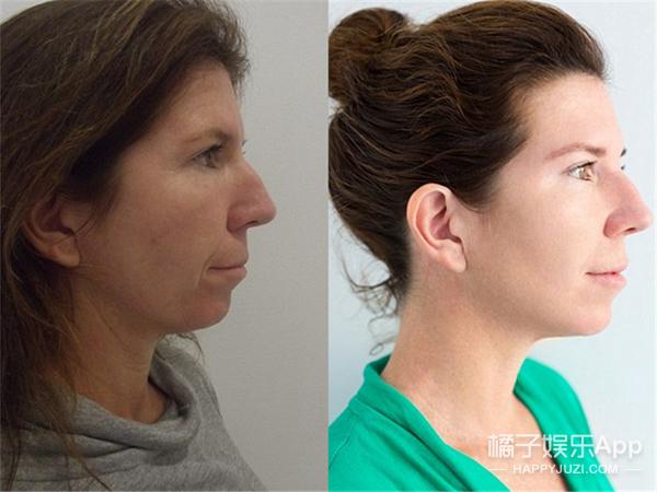 这个女人花4万美元做了个整容拉皮手术,结果。。。