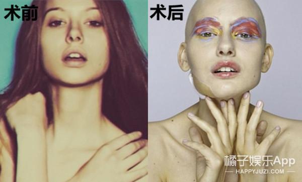 停止抱怨请先改变,她没有下巴也要做最美超模!
