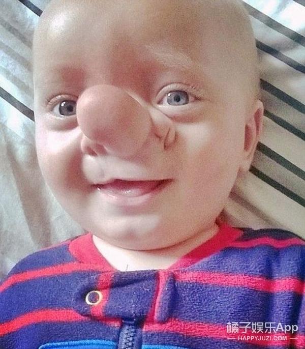 """现实版匹诺曹,他的鼻子上天生有个""""球"""""""