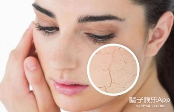 起痘,干燥,浮肿,节后皮肤状况连连你中招了吗?!