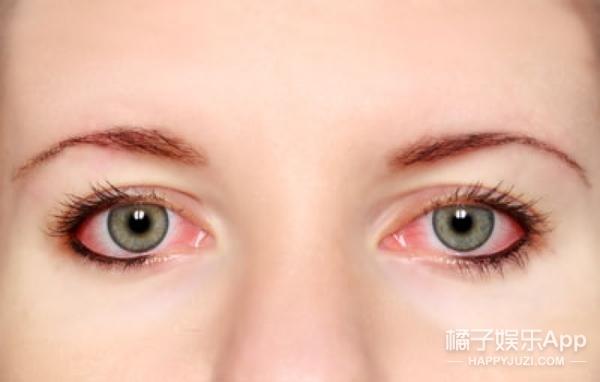 测 | 美瞳那么热 你适合戴吗?