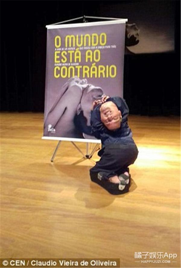 巴西男子头朝下生长:没关系你依然可以活得漂亮