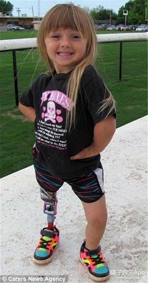 她9个月大时截肢,却梦想成为拉拉队员