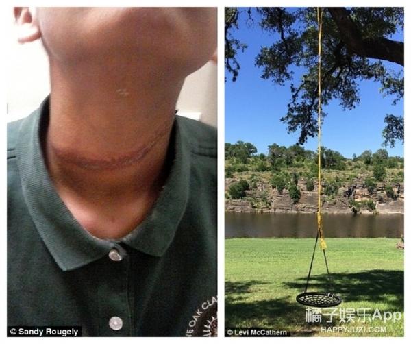 12岁小女孩被3名男同学霸凌,伤势惨不忍睹