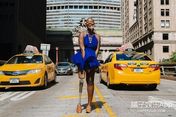 癌症、截肢也没有难倒她,这个爱美的黑人女孩成为时尚博主,感动了所有人!