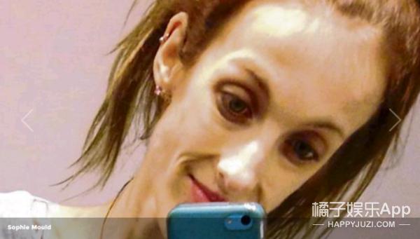 21岁少女因厌食症死亡,去世时只有31公斤