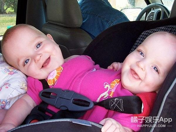 世界最罕见的连体婴,长大分开后的人生是这样