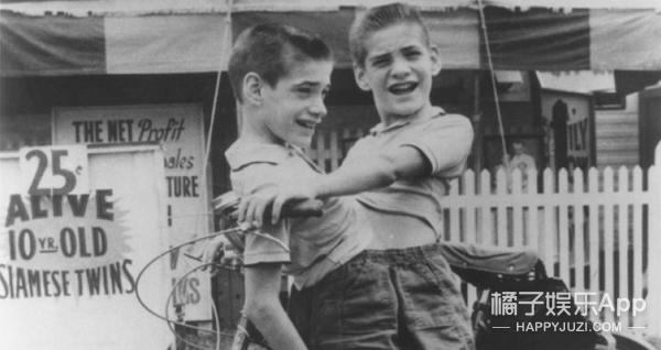 65年共用一个身体,他们是世界最年长的连体双胞胎!