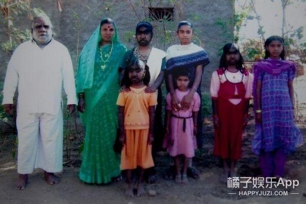 """印度5月大男宝继承家族""""狼人""""基因 浑身是毛"""