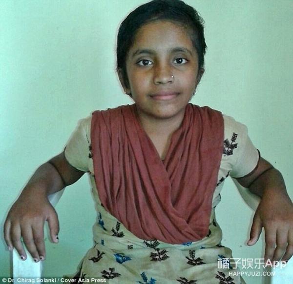 印度女童遭寄生虫入侵,脑部挖出史上最大囊肿