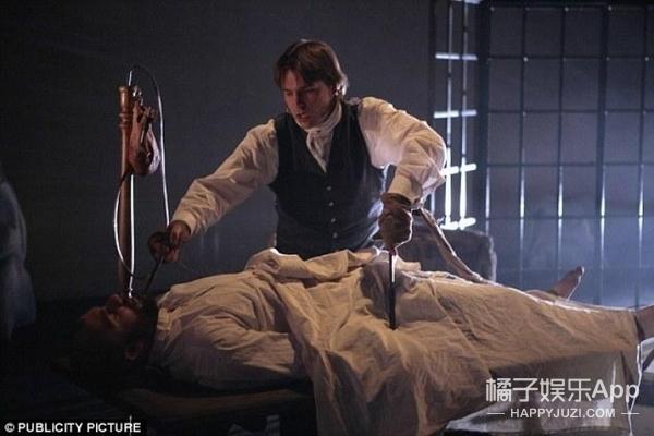 因为身体萎缩,俄罗斯小伙自愿接受换头手术
