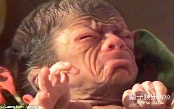 新生婴儿因早衰像80岁老人,父母依旧感到幸福并认为这是奇迹