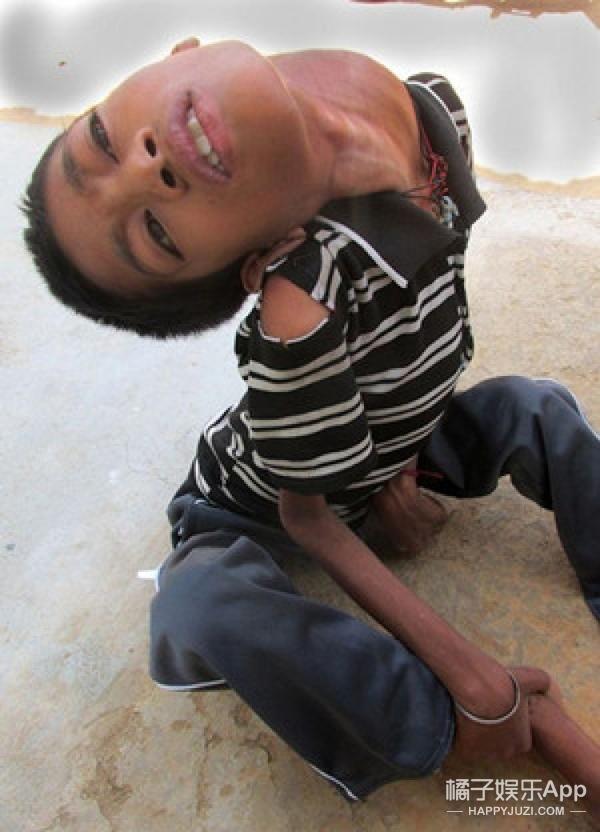 """印度""""头朝下""""男孩接受手术 终于能正常看世界"""