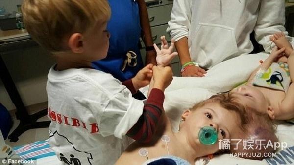 罕见连颅双胞胎进行头部分离手术