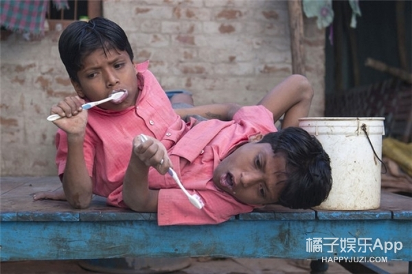 印度连体兄弟共用一双腿,希望永远不被分