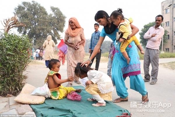 印度6岁男孩长大头,被村民奉为神的儿子!
