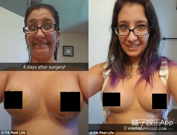 27岁女孩两个乳房不一样大,一个A罩杯一个C罩杯