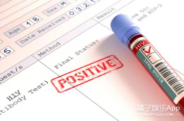 自己在家就可以检测HIV病毒?
