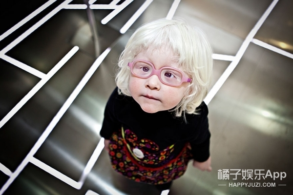 摄影师拍摄的白化病人,让我们见到了摄人心魄的美!