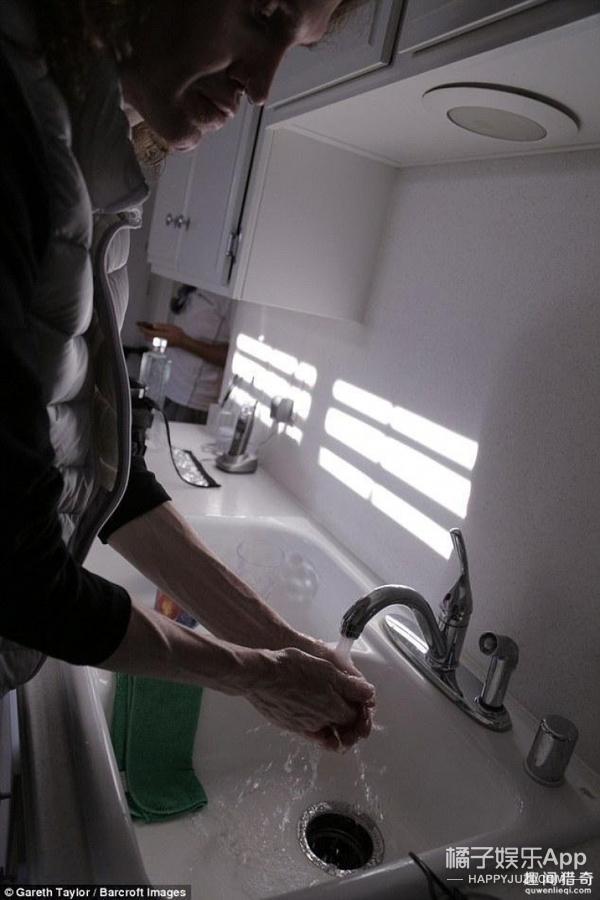 男子患强迫症,每天洗手75次,还不停地整容