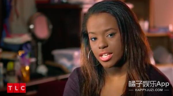 白斑病让黑人女孩躲在粉底下7年,现在她勇敢卸妆,你能接受么?