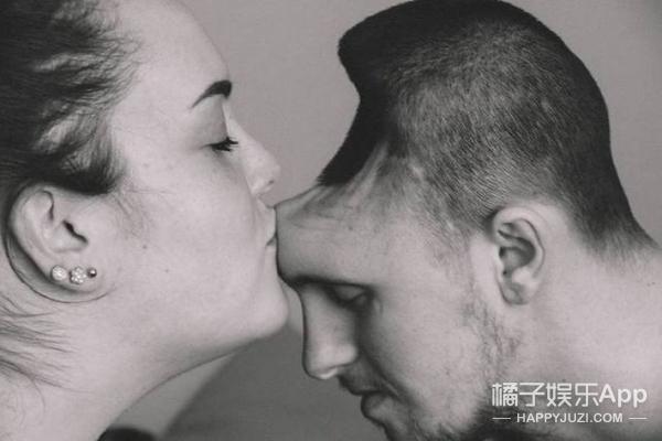 男子喝能量饮料导致头上烂了个洞,妻子拍下了这张照片