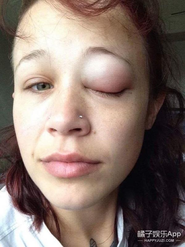 外国妹子尝试眼球纹身,结果流紫水,还可能失明