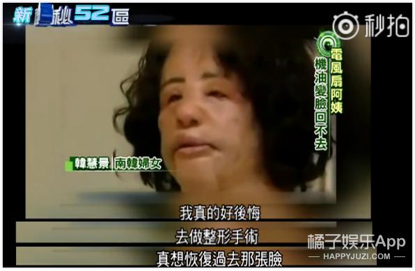 往脑部灌机油、修复手术17次...她因整容上瘾毁掉了人生
