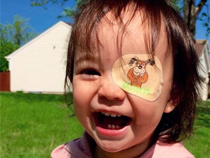 为白内障女儿制作创意眼罩  爸爸成了女儿看世界的另一只眼