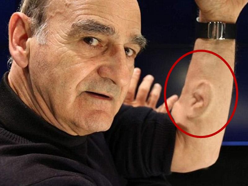 为让胳膊听见音乐,这个教授竟真的移植了耳朵到身上!