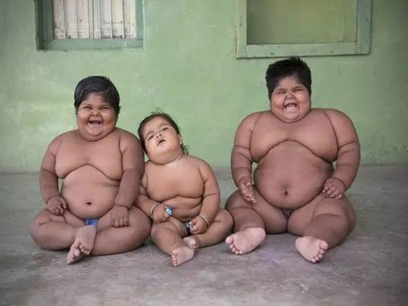 印度肥胖症小姐妹减肥后可以走路了