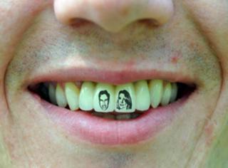 还在想往哪刺青吗?可别想啦,歪果仁的牙上刺青都火疯了!