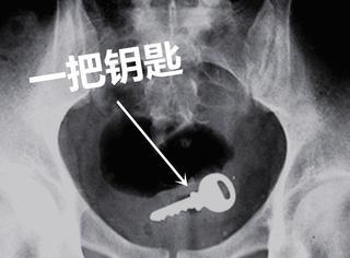 20张X光片,原来玩儿大了啥都可以塞进屁股里...