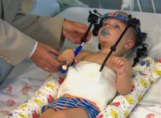 奇迹!婴儿车祸重伤,头重新接到脊柱上活了下来