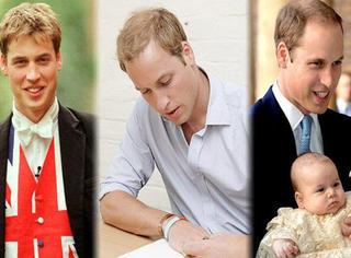 威廉王子,你的头发还好吗