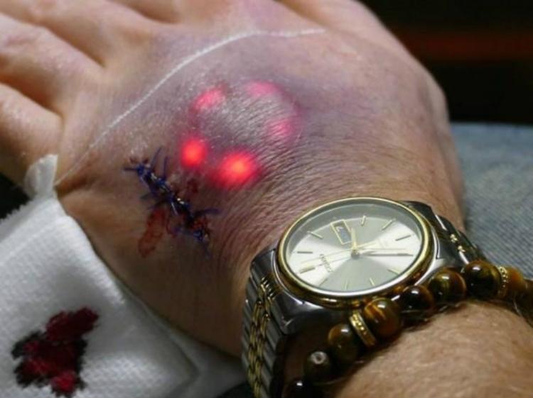 牛!这帮人把LED灯植入到自己手皮下面,但看上去真恶心...