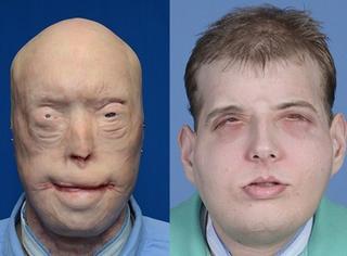 14年前因救火毁容,71次手术后他终于得到一张新面孔!