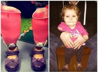 感人!1岁小女孩因病失去四肢,戴上义肢学走路