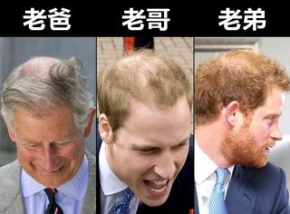 英国王室基因太可怕!紧步爸爸哥哥后尘,哈里王子也秃了!