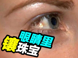 姑娘为让眼睛闪亮竟把铂金珠宝镶进眼球!
