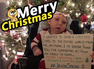 """泪奔,这位""""半头宝宝""""给全世界寄出一封超暖心的圣诞卡片"""