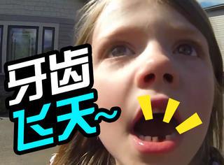 好想法!爸爸用飞机帮女儿创意拔牙