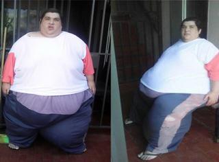 体重720斤还长102斤巨瘤,这个女孩卧病在家没人理