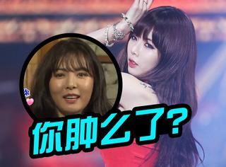 这是韩国性感小野马泫雅?脸整个儿肿了一圈啊!