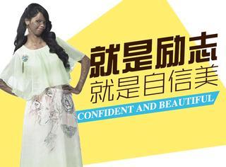 励志贴| 被泼硫酸却勇于站上镜头,自信的女人才最美!