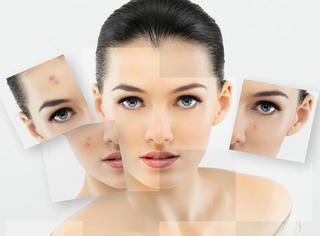 【护肤美体】长假带给你的皮肤问题这样解决