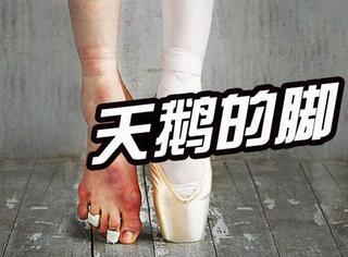 芭蕾舞演员脱下舞鞋后,美丽的背后原来承受了这么多