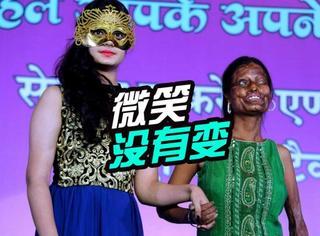 因被泼硫酸毁容:国际妇女节她们微笑走上走秀舞台